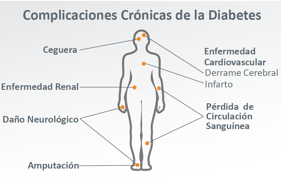 Espanol diabetes que es en